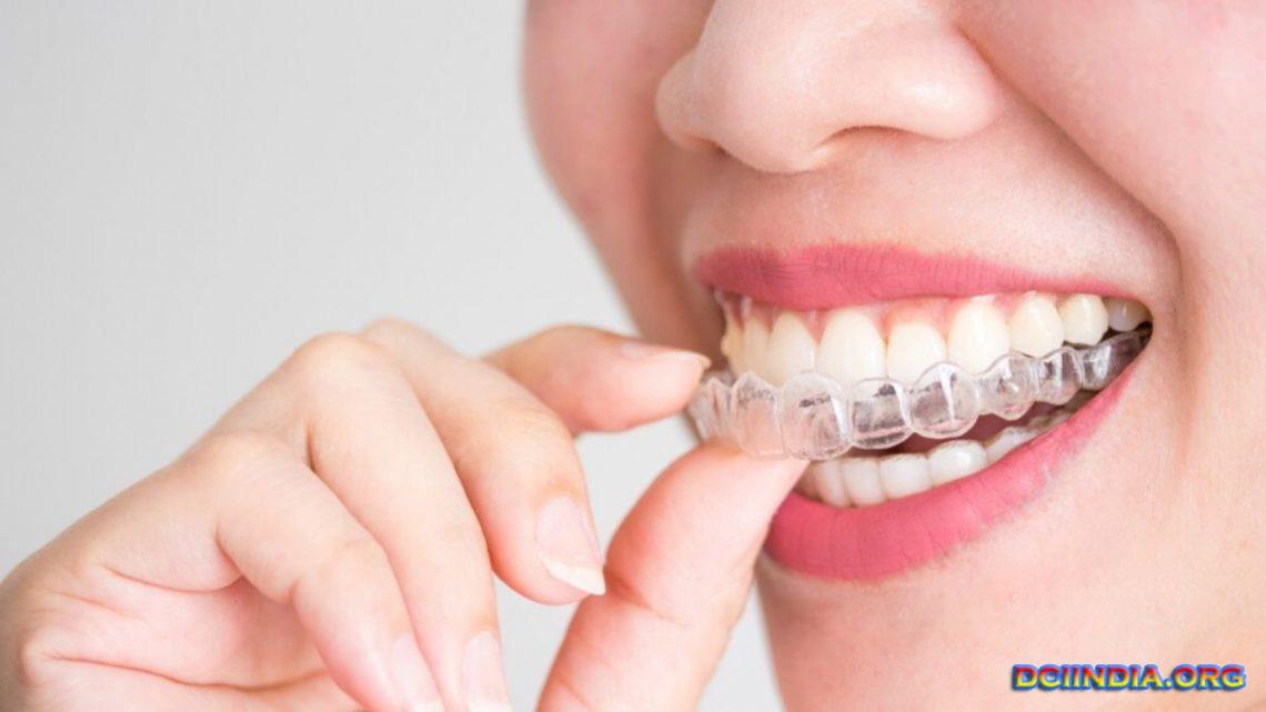 Cara Alami Membuat Gigi Berantakan Tanpa Kawat Gigi