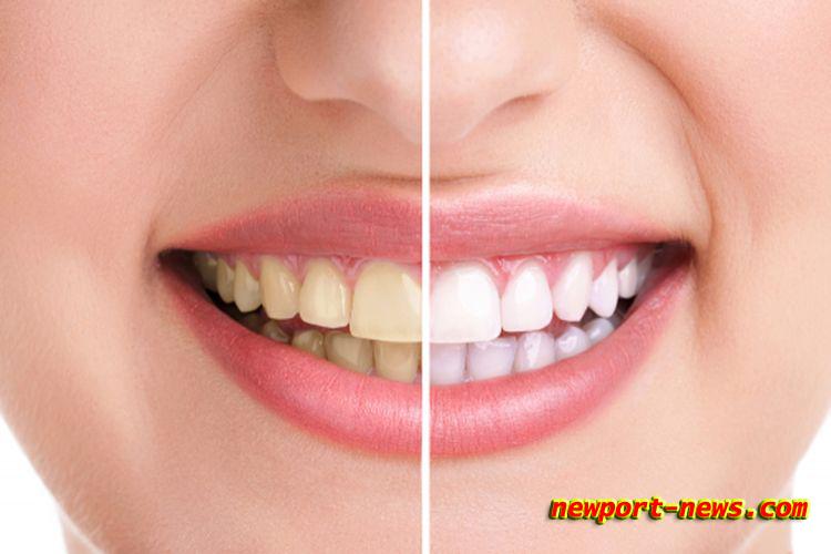 Bahan Alami Untuk Memutihkan Gigi Dan Merawat Dengan Alami