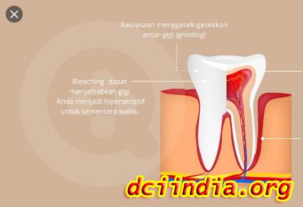 Penyebab Utama Gigi Sensitif Dan Gusi Sakit