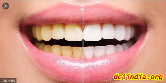 Cara Bersihkan Gigi Kuning Pakai Bahan Dapur