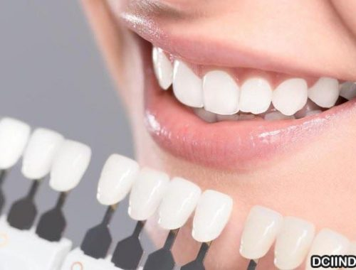 Penjelasan Veneer Gigi serta Keunggulan Dan Kekuranganya