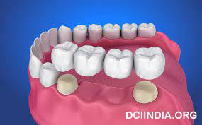 Memahami Perawatan Gigi Dengan Dental Crown