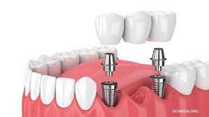 Mengenal Perawatan Gii Dengan Cara Implan Gigi