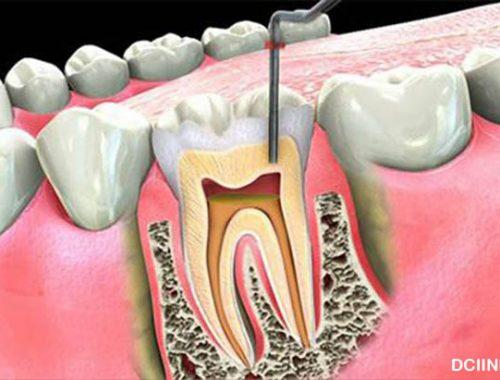 Perihal yang Butuh Dikenal mengenai Perawatan Saluran Akar Pada Gigi