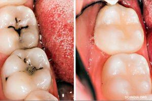 8 Cara Sederhana Menyembuhkan Kerusakan Gigi Secara Alami