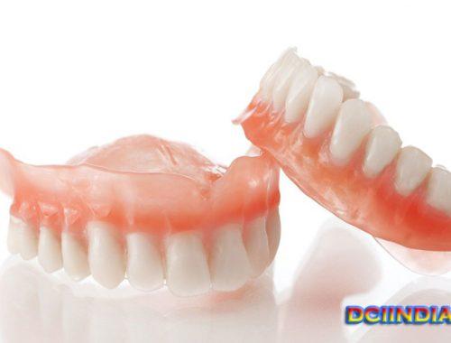 Prosedur Memperbaiki Gigi Tanpa Mencabutnya