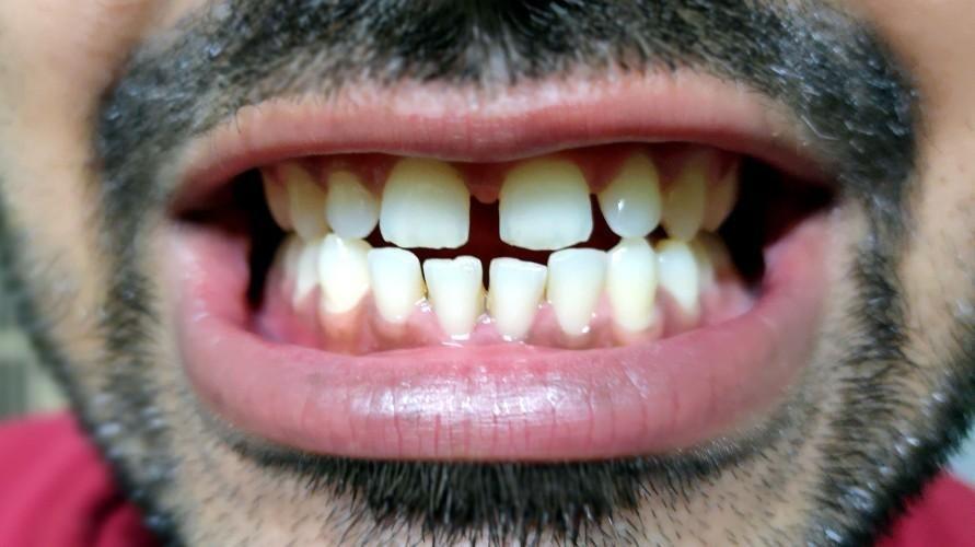 Cara Benar Supaya Gigi Tidak Bercelah