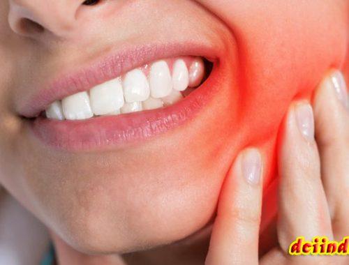 Obat Dan Solusi Dari Sakit Gigi Terbaru