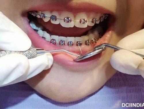 Mengenal Perawatan Gigi Dengan Behel Damon