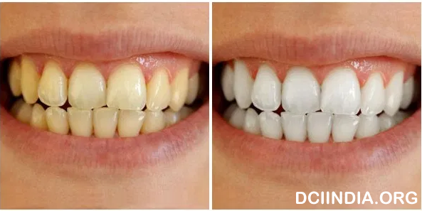 Mengenal Perawatan Gigi Dengan Cara Bleaching