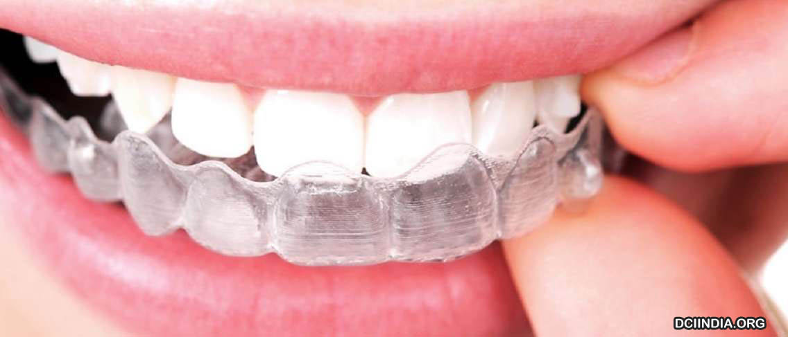 Metode Terkini Perawatan Gigi dengan Behel Tanpa Kawat