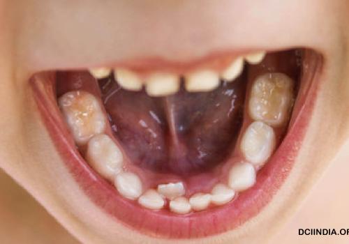 Metode Mengatasi Gigi Bergeser Serta Penyebabnya